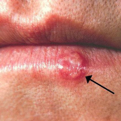 febbre sulle labbra