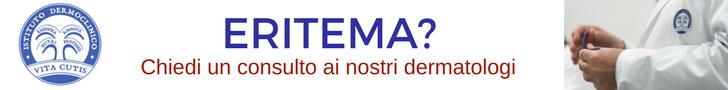Eritemi e ustioni: consulto online del migliore dermatologo a Milano all'Istituto Dermoclinico Vita Cutis Plinio