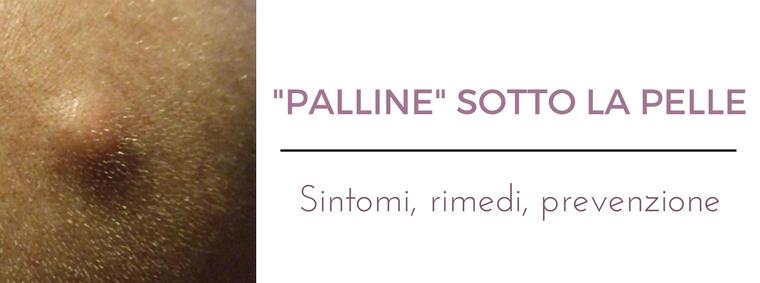 Palline sotto la pelle  i migliori consigli del Dermatologo Antonino Di  Pietro dell Istituto cc6f581a3a60