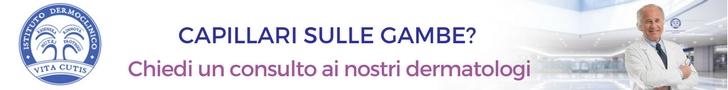 Capillari sulle gambe: consulto online del migliore dermatologo a Milano all'Istituto Dermoclinico Vita Cutis Plinio