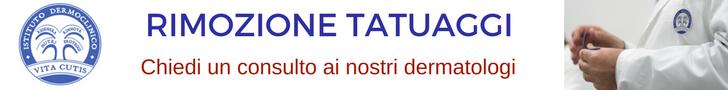 Rimozione tatuaggi: consulto online del migliore dermatologo a Milano all'Istituto Dermoclinico Vita Cutis Plinio