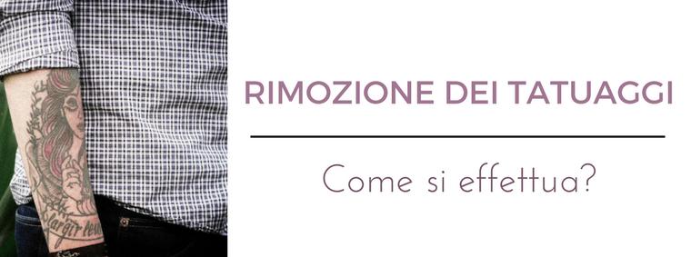 Rimozione dei tatuaggi: i migliori consigli del Dermatologo Antonino Di Pietro dell'Istituto Dermoclinico Vita Cutis di Milano