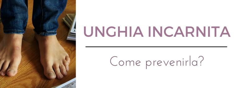 Unghia incarnita: consulto online del migliore dermatologo a Milano all'Istituto Dermoclinico Vita Cutis Plinio