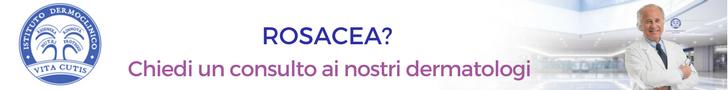 Prevenire la rosacea: consulto online del migliore dermatologo a Milano all'Istituto Dermoclinico Vita Cutis Plinio