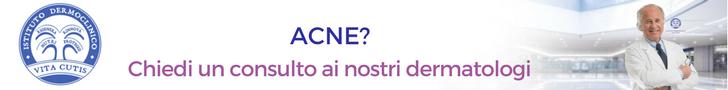 Cicatrici da acne: consulto online del migliore dermatologo a Milano all'Istituto Dermoclinico Vita Cutis Plinio