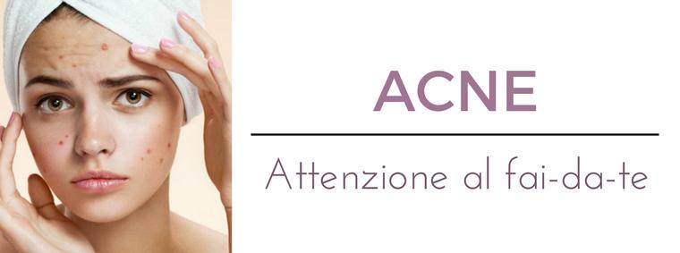 Come curare l'acne: i migliori consigli del Dermatologo Antonino Di Pietro dell'Istituto Dermoclinico Vita Cutis di Milano