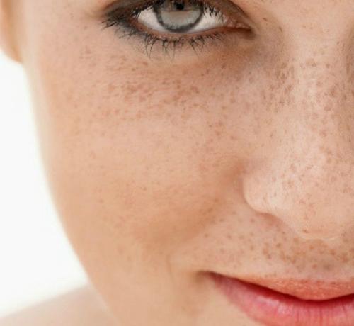 Macchie della pelle: i migliori trattamenti