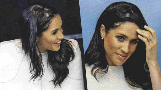 Anche Meghan Markle soffre di alopecia areata?