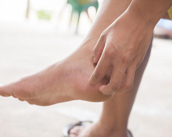 Un semplice prurito ai piedi può nascondere problematiche adeguate: ecco come analizzare opportunamente i propri sintomi