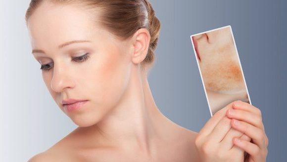 Come trattare la pelle secca del viso di diverse zone.