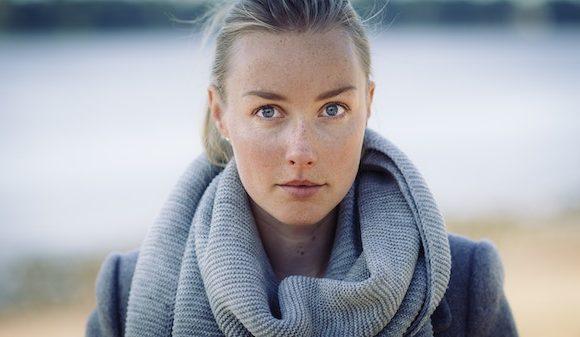 Gli alimenti per idratare la pelle secca in inverno.