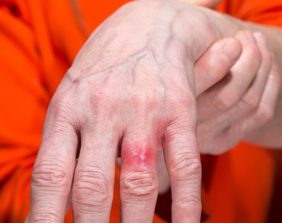 L'allergia al nichel si presenta spesso con rash cutanei nelle zone dove indossiamo anelli e collane
