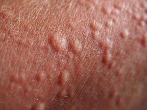 È importante curare un rash cutaneo per evitare che evolva in una forma di dermatite da contatto