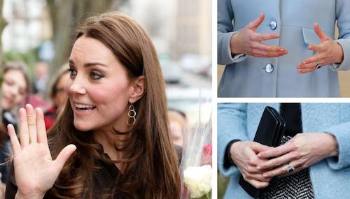 Kate Middleton malata? Ecco i cerotti sulle mani: è forse psoriasi?