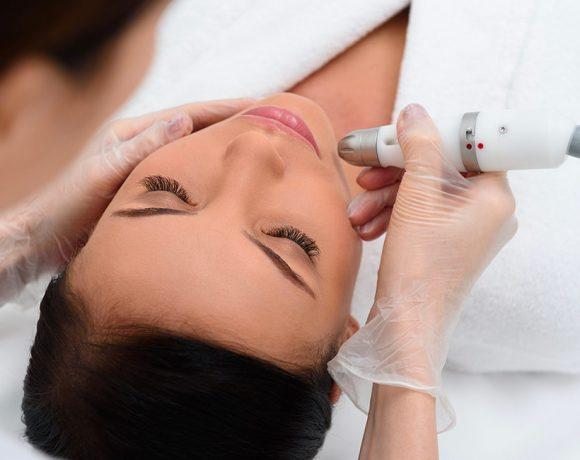Il laser, il trattamento migliore per l'eliminazione delle macchie cutanee.