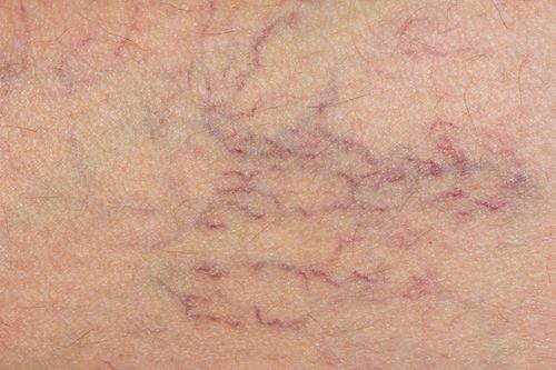 Vene varicose: immagini