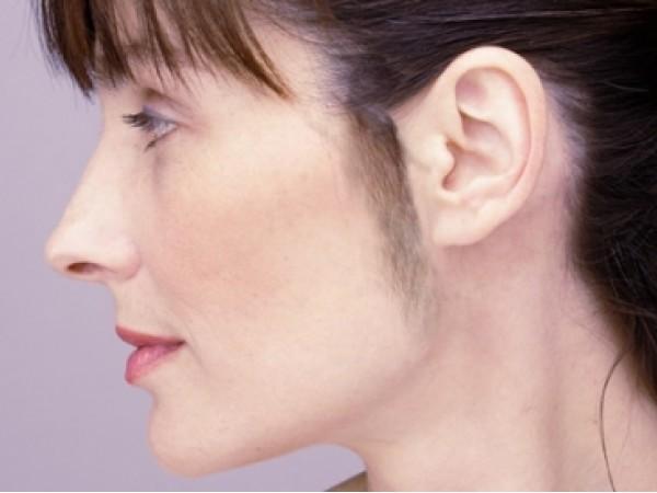 Irsutismo femminile: i rimedi dal dermatologo