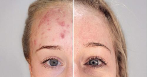 I risultati della terapia biofotonica contro l'acne.
