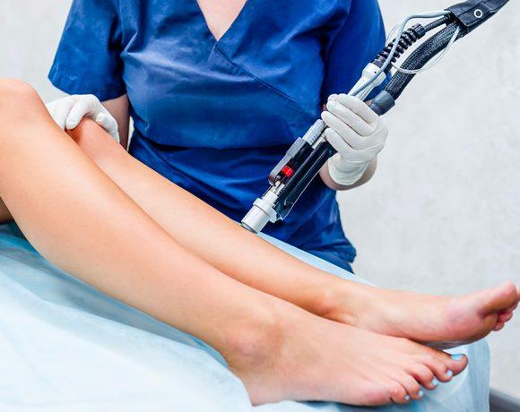 Quali sono i pro e i contro dell'epilazione laser