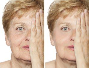Il prima e il dopo dei trattamenti estetici contro le rughe