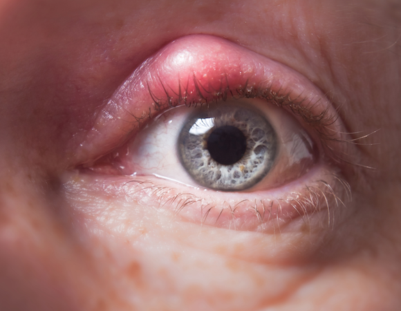RImedi naturali contro il calazio all'occhio e differenze con l'orzaiolo
