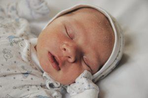 La crosta lattea compare in genere sul viso o il cuoio capelluto del neonato e scompare entro i 3 mesi di vita