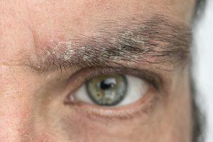 La forfora sulle sopracciglia è uno dei sintomi più comuni di dermatite seborroica