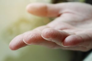I consigli del dermatologo Antonino di Pietro per curare la pelle delle mani
