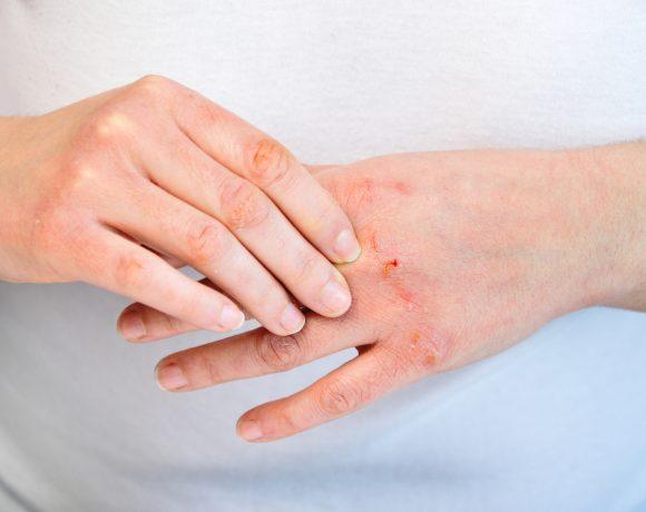 I rimedi a cui ricorrere quando si ha la pelle delle mani secca e disidratata