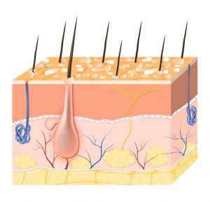 La dermatite seborroica è una delle possibili cause scatenanti della forfora
