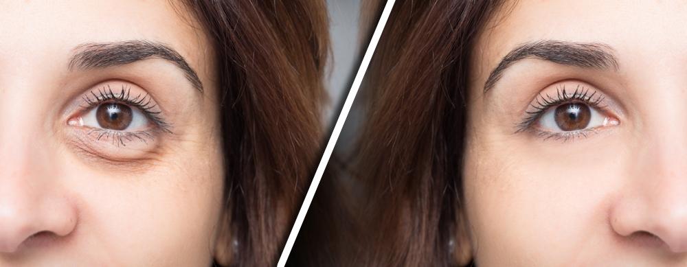 I gel drenanti aiutano a combattere il problema degli occhi gonfi al mattino