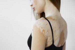 La vitiligine si manifesta con antiestetiche macchie bianche sulla pelle di viso e corpo