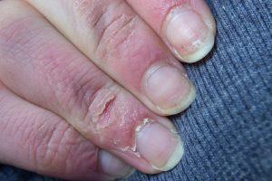 Quando la pelle di mani e piedi si fessurizza e screpola bisogna trovare un rimedio per i geloni