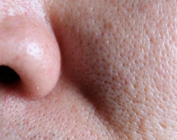 Come ridurre il problema dei pori dilatati e dei punti neri tipico della pelle maschile