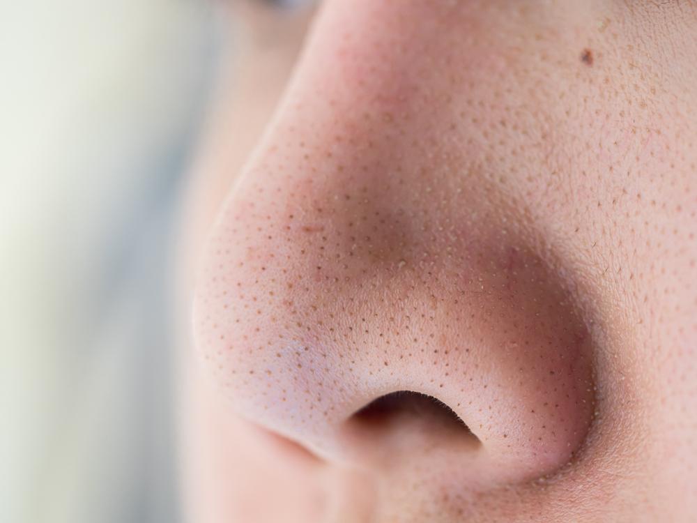 I pori dilatati e i punti neri si formano soprattutto vicino al naso