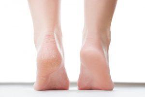 Massaggiare delicatamente i calli con una pietra pomice può aiutare a rendere di nuovo morbida e levigata la pelle dei talloni