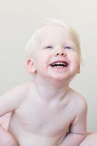 Nei bambini affetti da albinismo è ancora più importante curare la pelle con attenzione