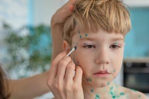 Usare creme antibiotiche sulle ferite fresche per prevenire le cicatrici da varicella