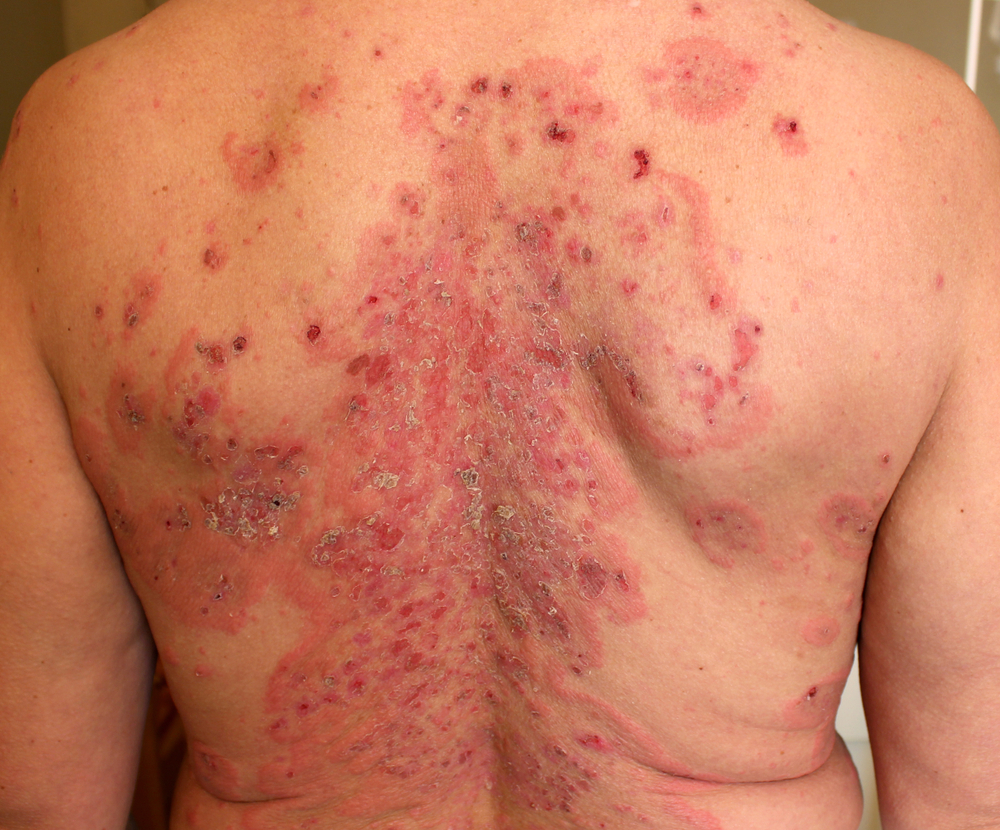 dermatite bollosa