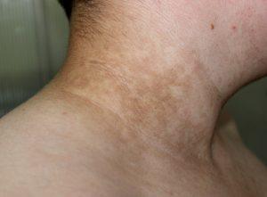 I sintomi dell'acanthosis nigricans sono macchie brune su collo, mento e corpo