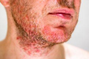 I brufoli sotto la barba sono una pseudofollicolite legata alla rasatura