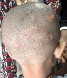La follicolite può colpire anche i bulbi piliferi del cuoio capelluto
