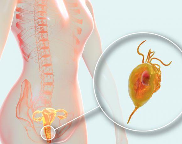 I sintomi della tricomoniasi nell'uomo e nella donna e le cure