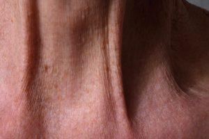 I segni dell'età sul collo si possono combattere grazie all'uso di creme ricche di fosfolipidi
