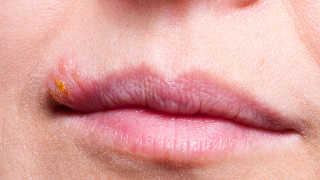 dieta contro lherpes labiale