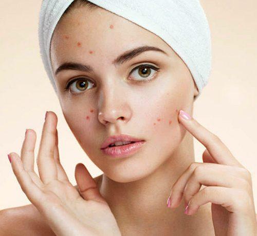 Cicatrici acne laser