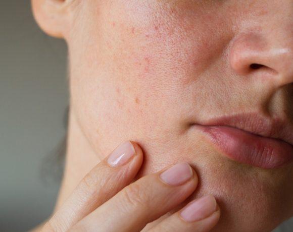 Macchie rosse sulla pelle del viso: ecco come curare la couperose
