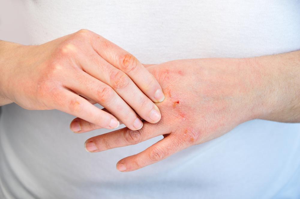 Il freddo può provocare lacerazioni anche sanguinolente sulle mani