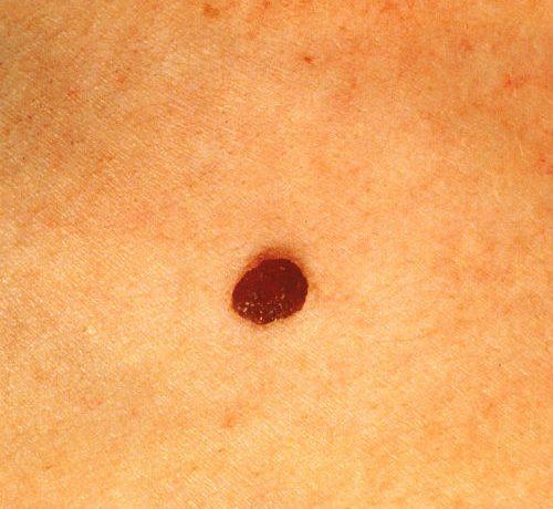 Nei pericolosi e tumori della pelle: scopri come intervenire in tempo con una diagnosi corretta