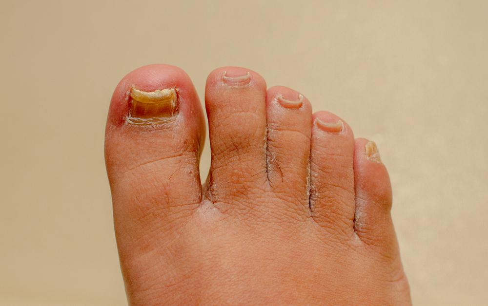Le unghie affette da onicomicosi si riconoscono da ispessimenti ed alterazioni evidenti del colore
